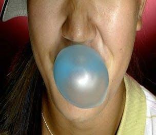 ChewingGum304