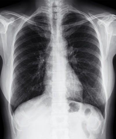 Zebra Medical Vision